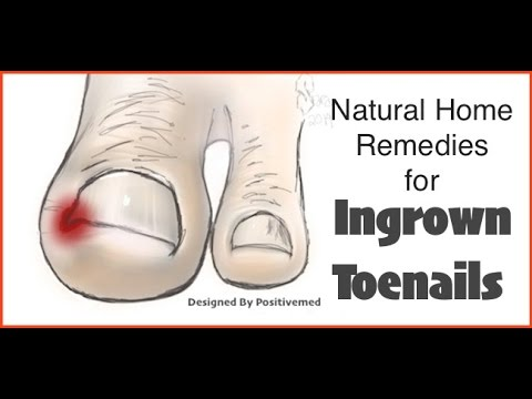 Video Natural Home Remedies for Ingrown Toenails