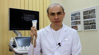 Качество УЗИ щитовидной железы