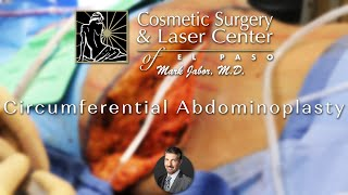 Circumferential Abdominoplasty (Body Lift) - Dr. Mark Jabor