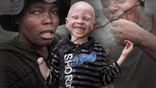 ЗА ЧТО АЛЬБИНОСОВ РУБЯТ НА КУСКИ.  Ужасы жизни альбиносов в Африке