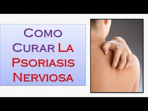 La psoriasis el tratamiento en izraile las revocaciones