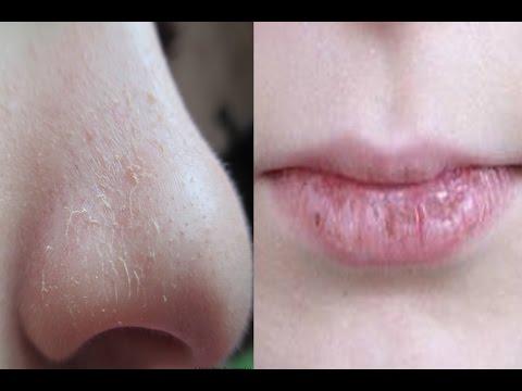 Скопление веснушек на лице