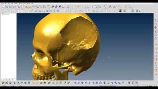 Cranial implant redesign using ThinkDesign