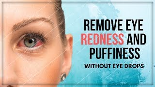 How to Get Rid Of Red Eyes without Eye Drops | Clear Red Eyes Naturally