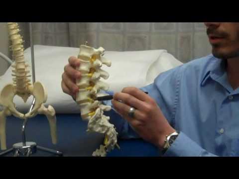 Trattamento di hip ankylosis