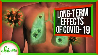 From Scarred Lungs to Diabetes: How COVID May Stick With People Long-Term | SciShow News