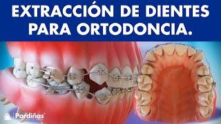 Extracciones de dientes en ortodoncia ©  - Clínica Dental Pardiñas