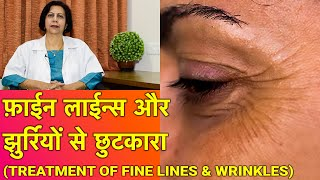 झुर्रियों से बचाव और ईलाज || Treatment of Wrinkles & Fine Lines (In HINDI)