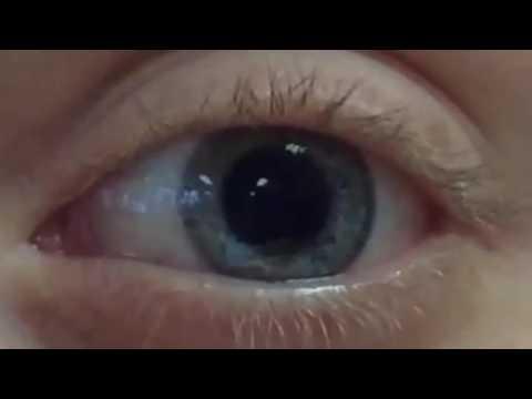 Teste pentru deficiențe de vedere