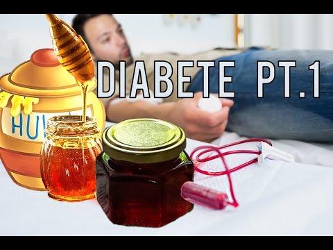 Storia della malattia hanno sintomi del diabete di tipo 2
