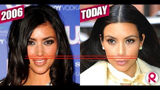 How To Look Younger - One Weird Trick // Do Your Lips Make You Look Older?