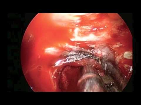 Endoscopic Removal of Pituitary Tumor