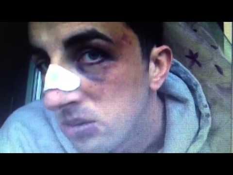 Bruciati in passaggio posteriore e sangue in Calais