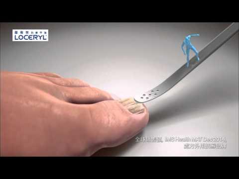Halamang-singaw sa mga paa sa pagitan ng toes clotrimazole