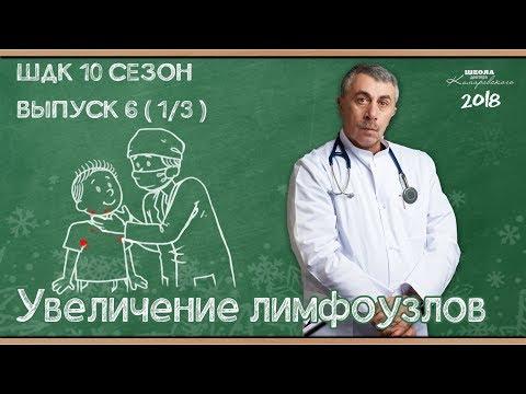 Симптомы: Увеличение лимфоузлов - Доктор Комаровский