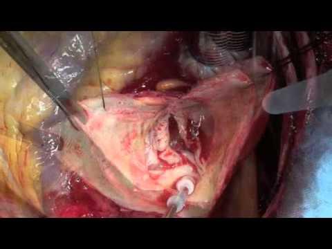 Pressurizzazione causa osteocondrosi