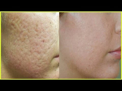 Atopitchesky la dermatite où guérir