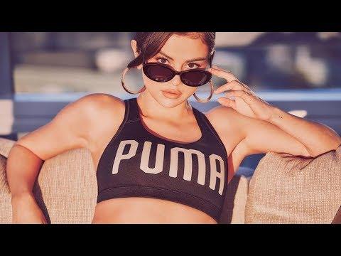 Selena Gomez Shows Off Kidney Scar in Bikini: Looks Happy & Healthy