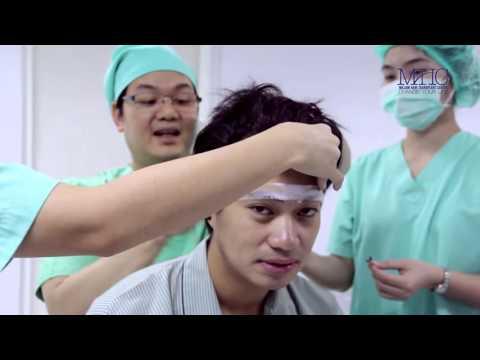 สมาชิกก่อนที่จะผ่าตัดหลัง