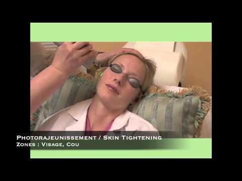 Le traitement de la varicosité des veines sur les pieds par le laser le prix à saratove