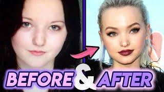 Dove Cameron | Before And After Transformations | Complete Plastic Surgery Procedures!