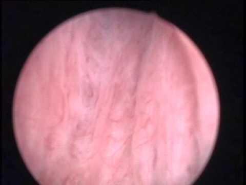 Pregătirea pentru prostata cu ultrasunete a vezicii urinare
