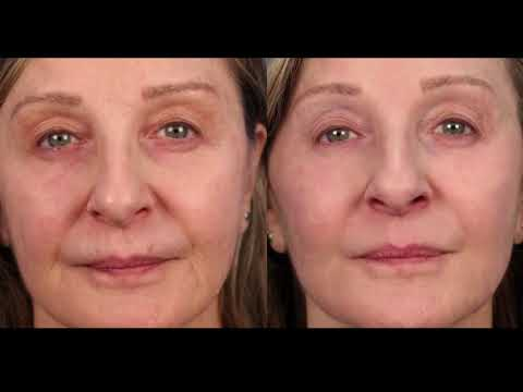 Dr. Mulholland on CityLine Discusses Facial Rejuvenation -   PRP/Vampire Lift Video Thumbnail