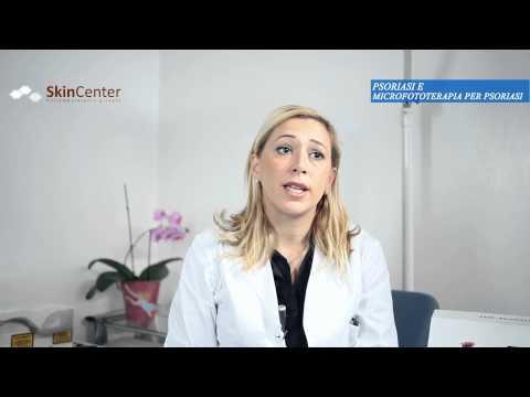Psoriasi e fototerapia
