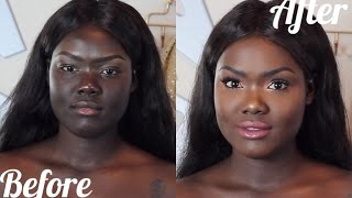 HOW TO: MATCH YOUR FACE TO YOUR BODY    DARK SKIN HYPERPIGMENTATION