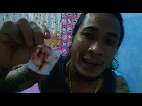แพทย์ในหลอดเลือดดำที่ขา