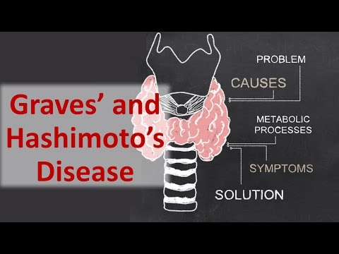 Video Graves' and Hashimoto's Disease