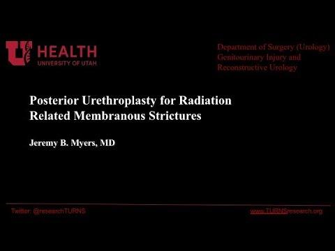 Uretroplastyka tylna po radioterapii z powodu raka stercza