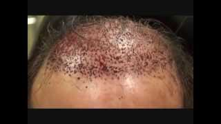 Mens Hair Growth Centers – Immediate Postop FUG