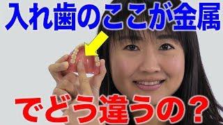 金属床の入れ歯を選択するポイント