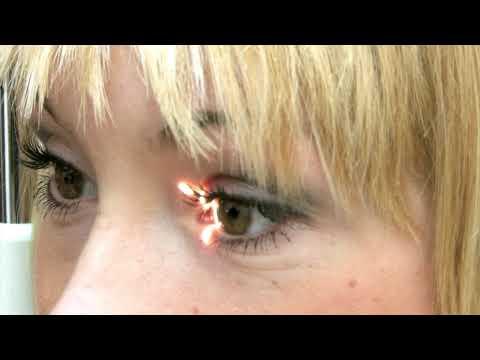 Отзывы о коррекции зрения в саранске