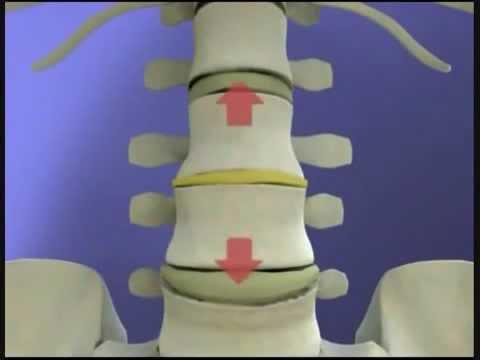 Как облегчить боль при болях в спине при беременности