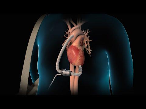 Liaudies gynimo priemonės pagal aukšto arterinio spaudimo