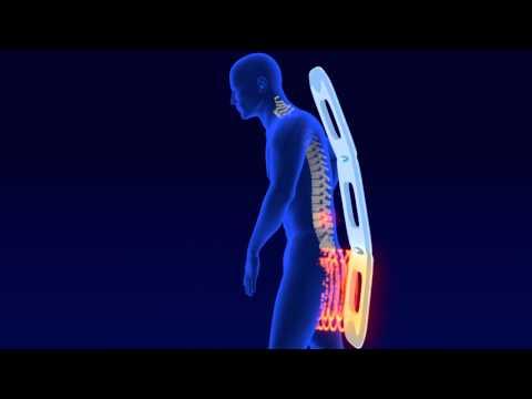 Loțiuni pe articulații cu artroză