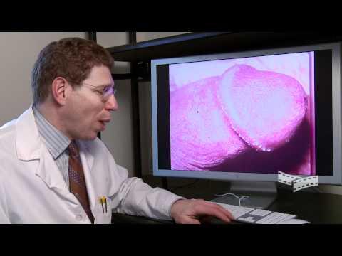 Die Schuppenflechte, wie vom Laser zu heilen