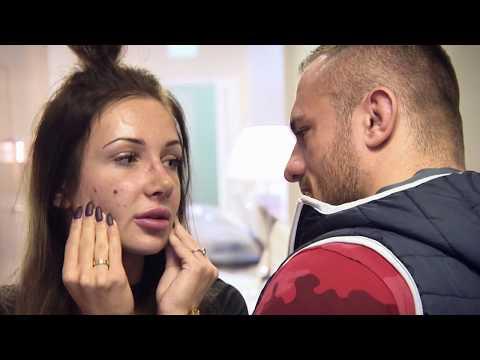 Pigmentacja twarzy ludowa