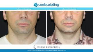 CoolSculpting with Dr Gerrish Treatment Video