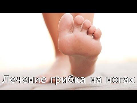 Malyschewa die Behandlung gribka der Beine