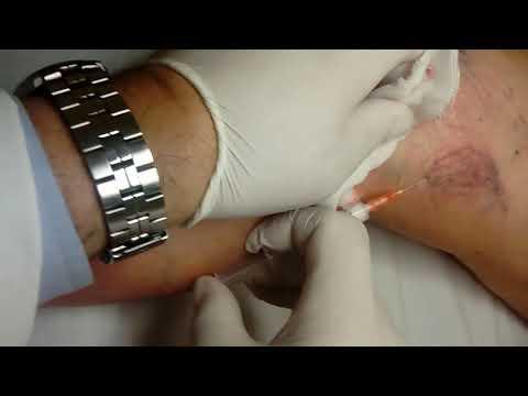 Varicosity del trattamento di estremità più basso di unguento e targa