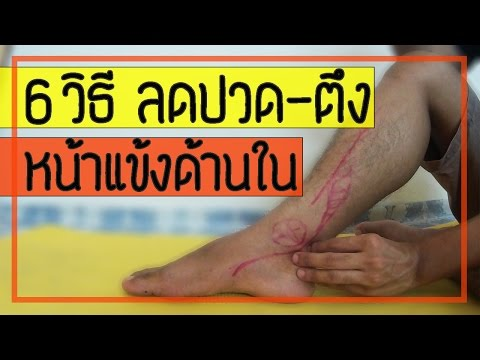 Thrombophlebitis โหลด NAT