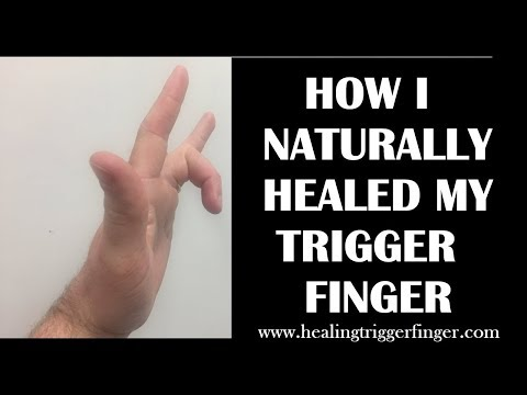 Video How I Healed My Trigger Finger Naturally