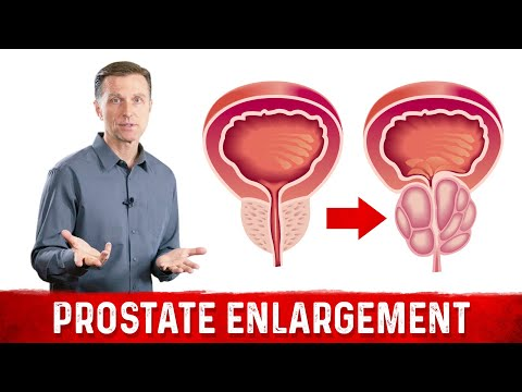 Price and exchange rate treatment of prostatitis