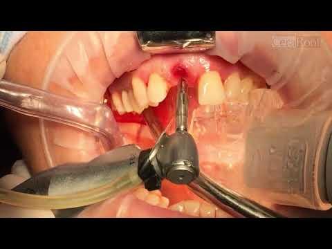 Removing a titanium dental implant and placement of a CeraRoot ceramic implant.