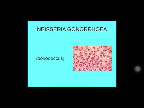 Paraziták az emberi testben az opisthorchiasis tünetei