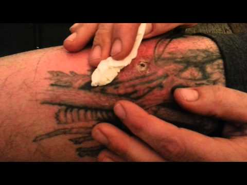 Infected Tattoo Pus