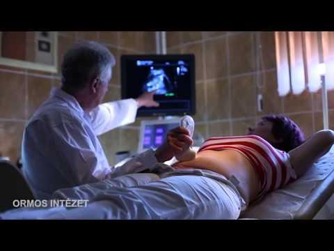 Prosztatagyulladás Fort ár